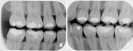 Bitewing X-Rays