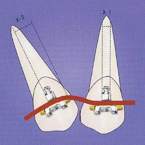 fast-braces-wire