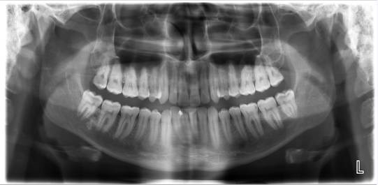Panoral X-Ray